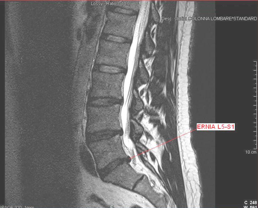 Risonanza,lombare,ernia,disco,infiammazione,dolore,rachide,vertebra,colonna