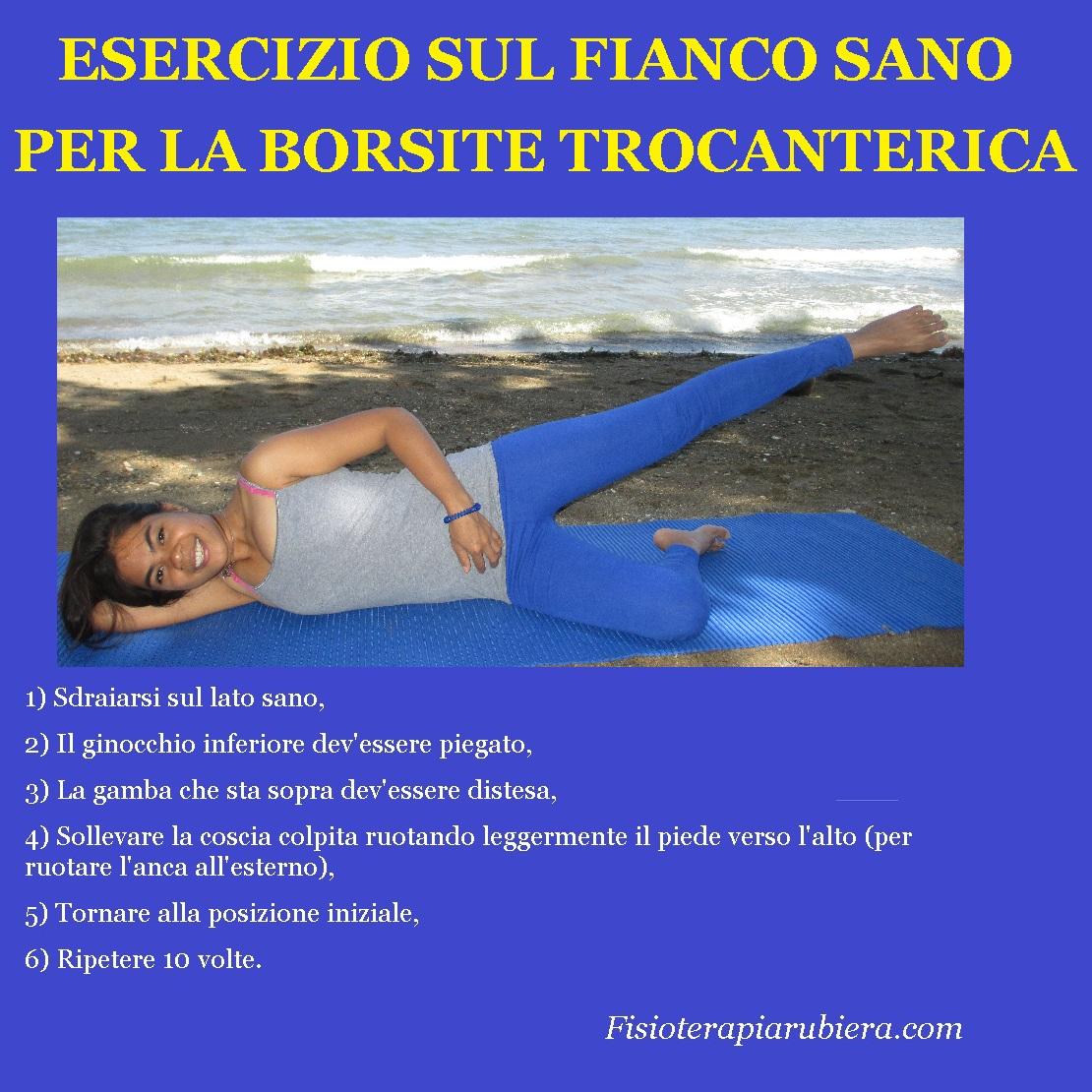 esercizio-per-borsite-trocanterica