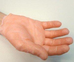 Palmo della mano con il guanto di paraffina, pellicola, compressione, mano, artrosi, paraffina, caldo, gonfiore, edema, sgonfiare, dolore, deformazione, reumatoide