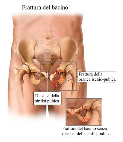 Frattura del bacino,branca ischio pubica,ischio,pube