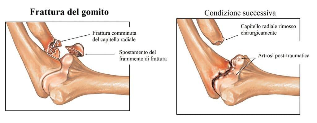 Frattura del capitello,radio,artrosi,complicanze