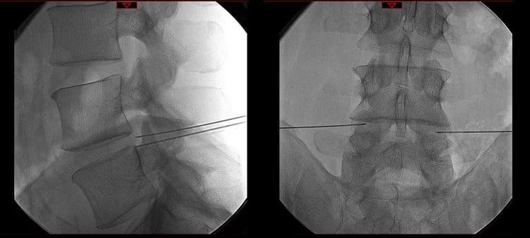 infiltrazioni,fluoroscopia,L4,L5