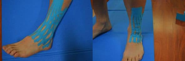 Kinesio,taping,caviglia