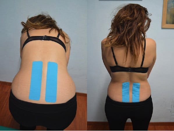Kinesio,taping,lombare,schiena