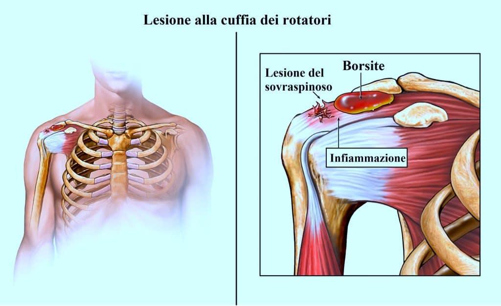 sindrome da conflitto della spalla o subacromiale sintomi