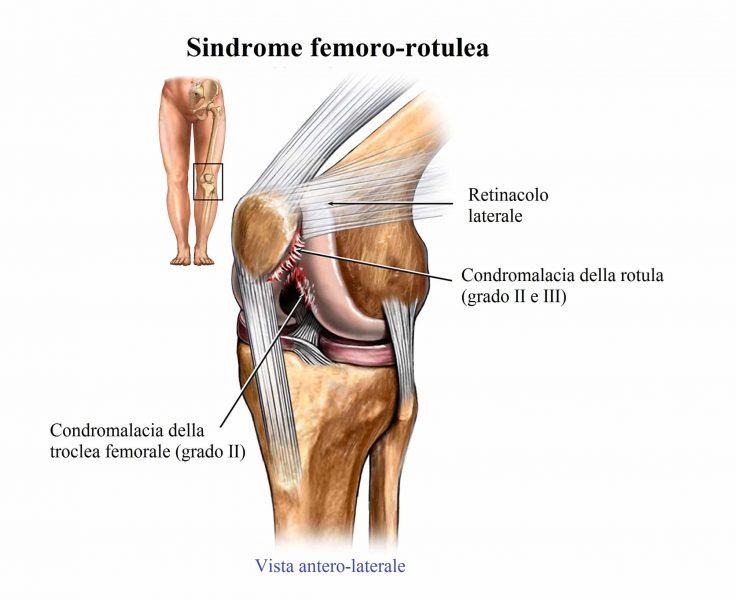 Lesione della cartilagine femoro rotulea