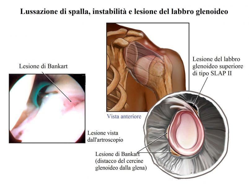 Lussazione alla spalla,lesione del labbro glenoideo