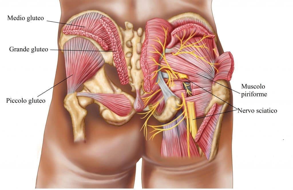 Cura di ernia di reparto lombare di un cerotto di spina dorsale