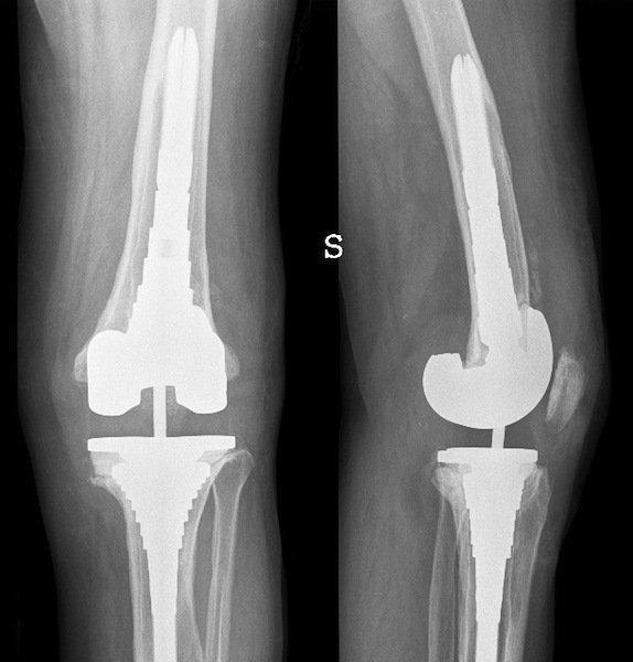 protesi, artrosi, totale, ginocchio, male, articolazione, infiammazione, dolore, fisioterapia, riabilitazione