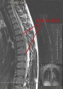RMN, dorsale, nervo, muscolo, fisioterapia e riabilitazione, dorso, neuropatia, discopatia, ernia del disco, protrusione, bulging, colonna, disco, radice nervosa, anulus fibroso, nucleo polposo, D1, D2, D3, D4, D5, D6, D7, D8