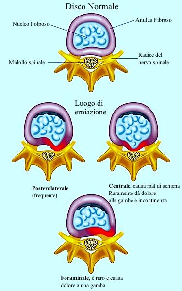 Ernia del disco,foraminale,radicolare,postero-esterna,centrale