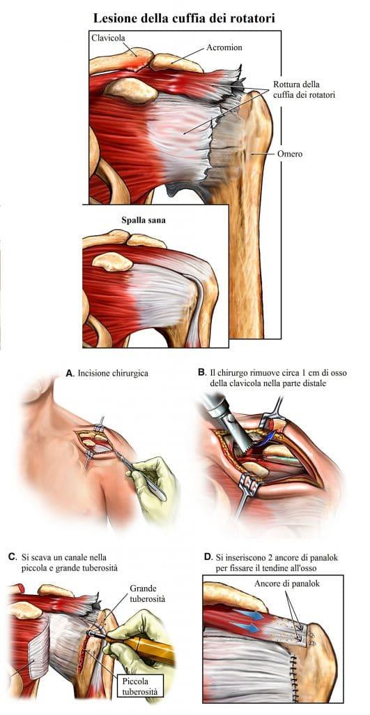Lesione del sovraspinoso,cuffia,intervento chirurgico