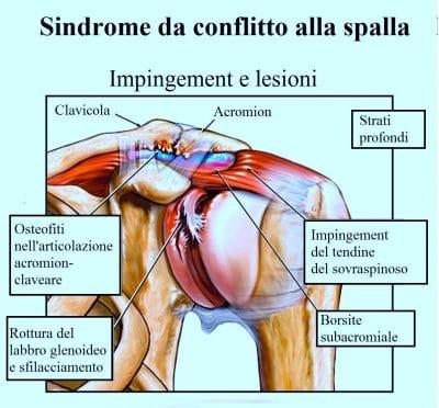 Sindrome da conflitto,subacromiale,spalla