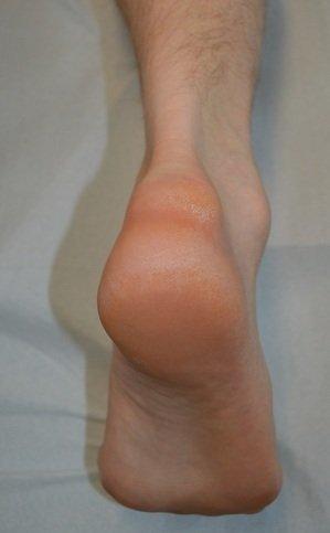 haglund,sindrome,protuberanza,calcagno,tendine,achille,borsite,dolore,infiammazione