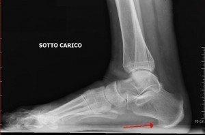 Radiografia,piede,osteoporosi,sperone calcaneare,tallone