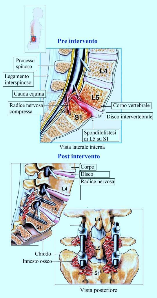 Spondilolistesi,intervento di fusione vertebrale