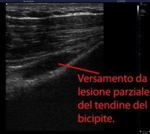 ecografia,lesione,tendine,bicipite