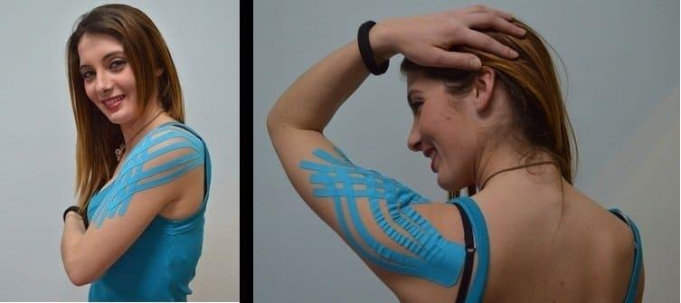 kinesio,taping,borsite,spalla,gonfiore,dolore,movimento,terapia