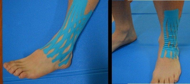 kinesio,taping,distorsione,caviglia,gonfiore,dolore