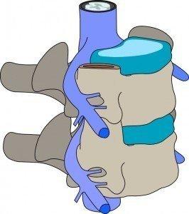 Colonna vertebrale con disco intervertebrale, radici nervose e midollo spinale fisioterapia, riabilitazione e rieducazione motoria