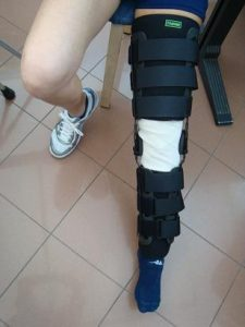 Tutore ginocchio, crociato anteriore, regolabile, angolazione, 30°, 60°, 90°, dolore, infiammazione, male, sintomi, sanitaria, stecche, rigido, morbido, strappo, frattura, caduta, trauma, immobilizzazione, legamenti rottura, lesione