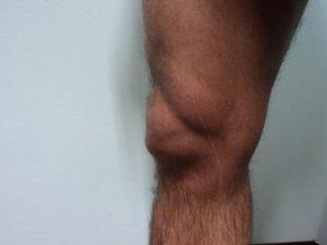 Borsite, ginocchio, sovra-rotulea, palla, liquido, infiammazione, dolore, flessione, acqua, infiltrazione, aspirare, bolla, terapia, fisioterapia e riabilitazione, cura