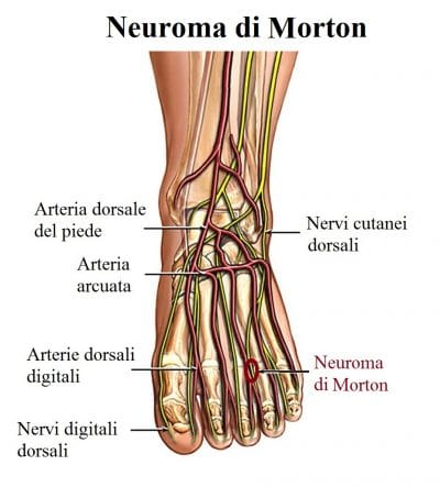 Neuroma di Morton,metatarsalgi