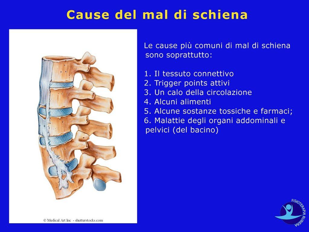 Cause-del-mal-di-schiena