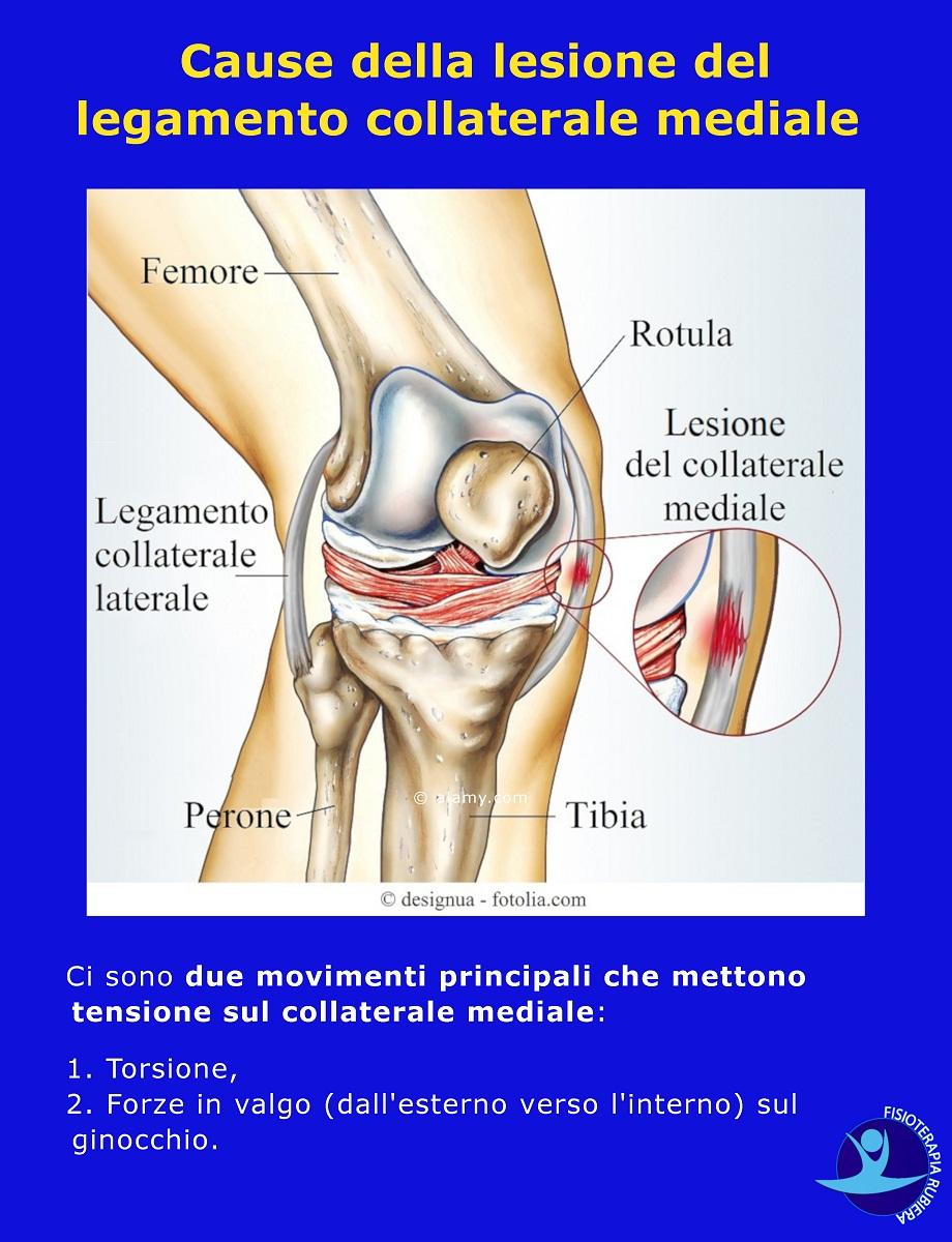 Cause-della-lesione-del-legamento-collaterale-mediale