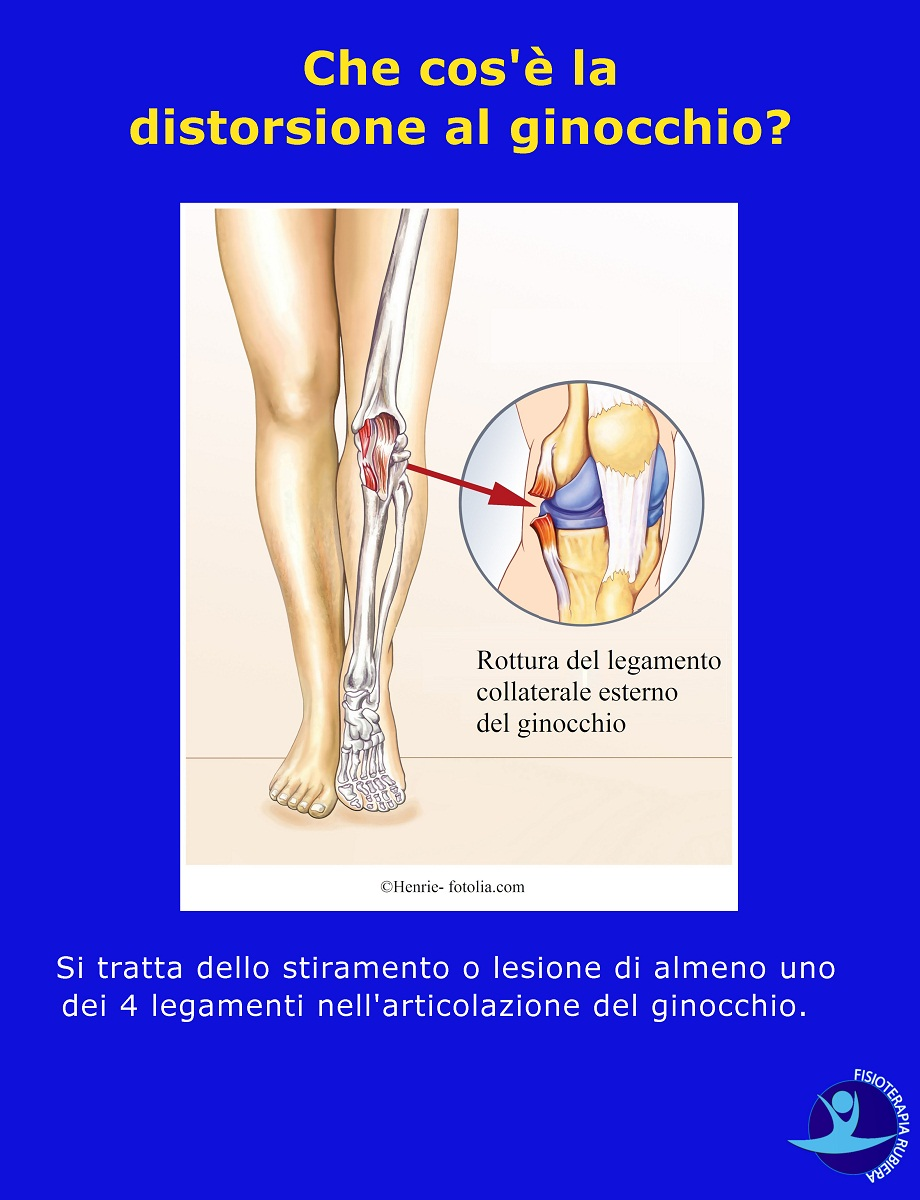 Distorsione al ginocchio