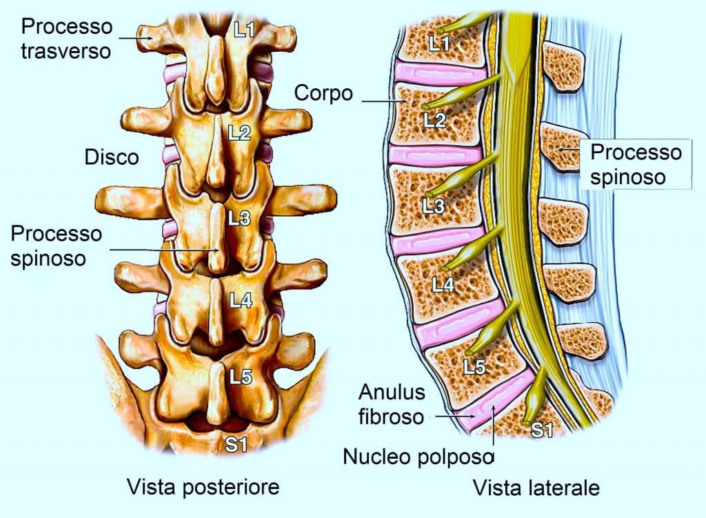 Colonna vertebrale lombare,corpo,disco,nervo spinale,anulus fibroso,nucleo polposo