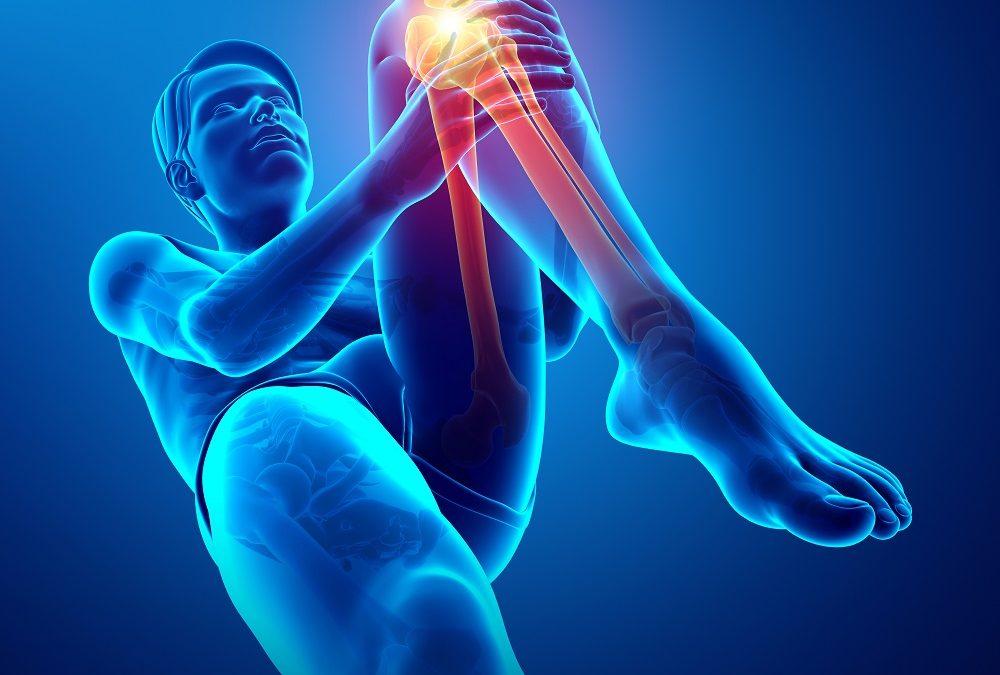 Come Curare l'Artrosi al Ginocchio: la Guida Definitiva