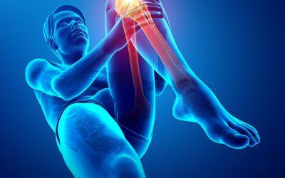 Fisioterapia per l'Artrosi al Ginocchio