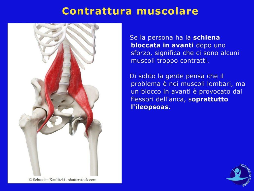 Contrattura-muscolare