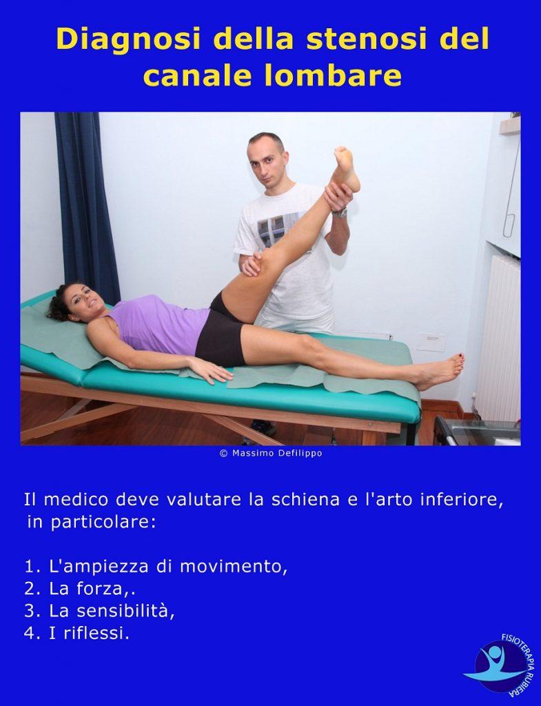 Diagnosi-della-stenosi-del-canale-lombare