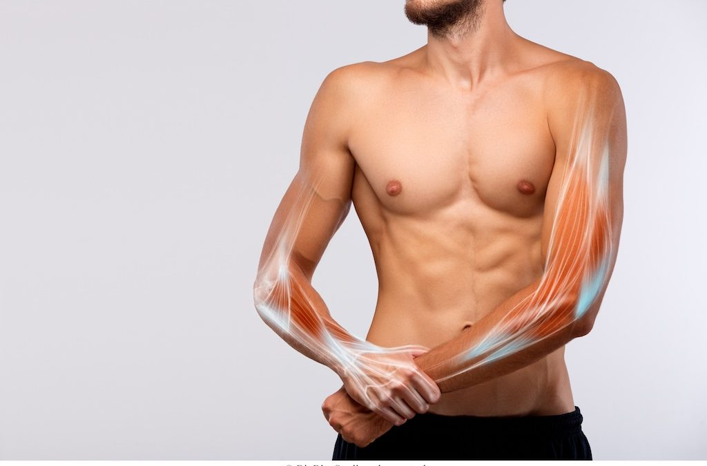 Dolore al muscolo – rimedi
