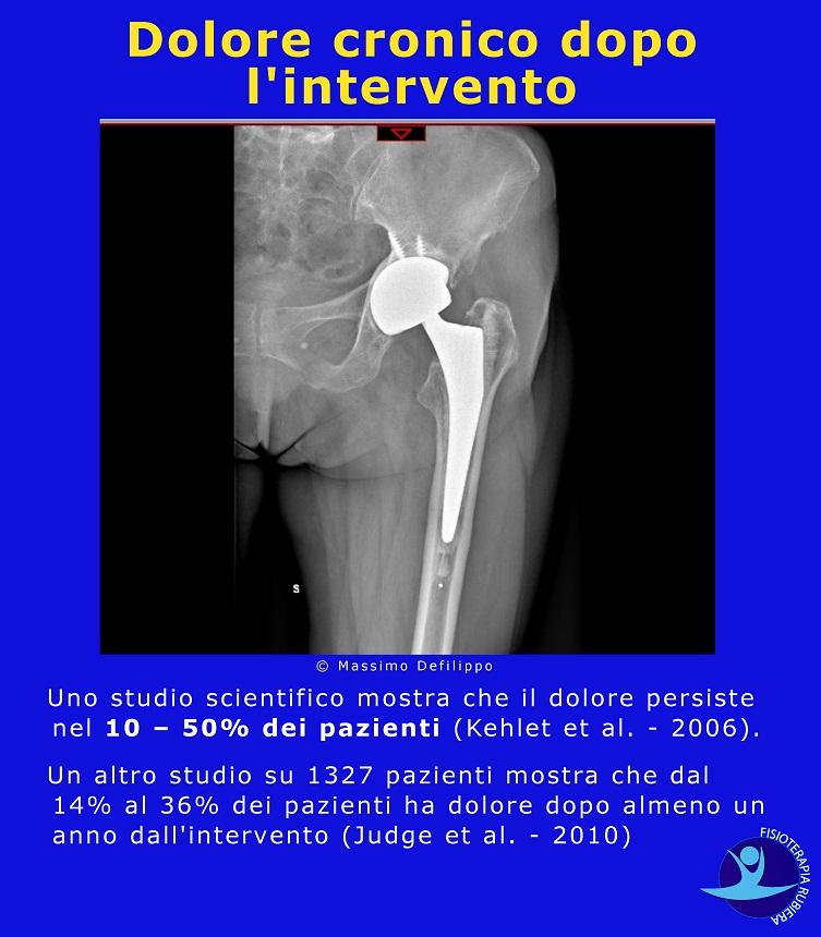 Dolore cronico, intervento, protesi anca