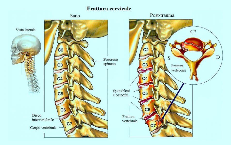 frattura vertebrale,vertebra c7,colpo di frusta,incidente