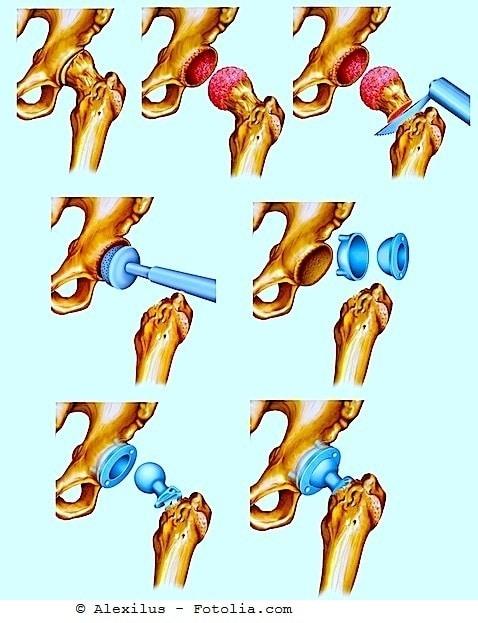 Intervento di protesi d'anca