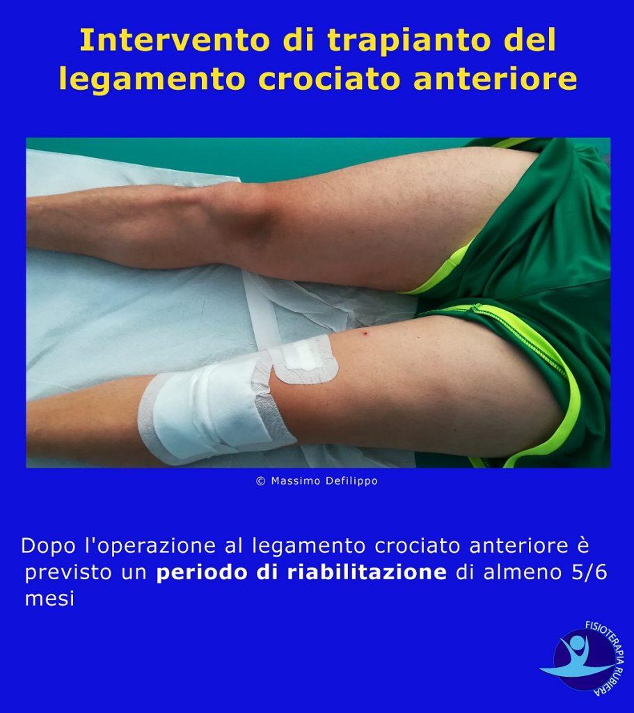 Intervento-di-trapianto-del-legamento-crociato-anteriore