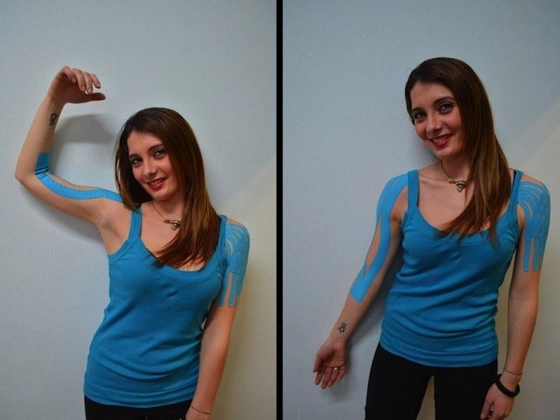 kinesio,taping,contrattura,bicipite,allungamento,accorciamento,grinza,dolore,muscolo