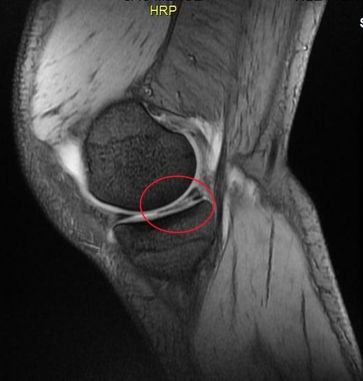 Lesione al menisco, sintomi e cause