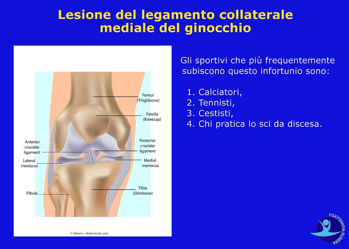Lesione del legamento collaterale mediale del ginocchio
