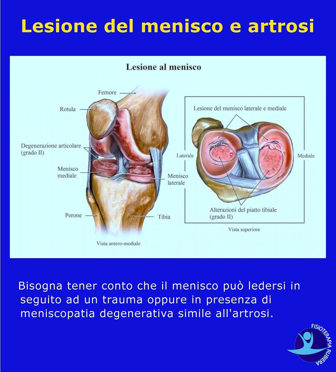 Lesione del menisco e artrosi