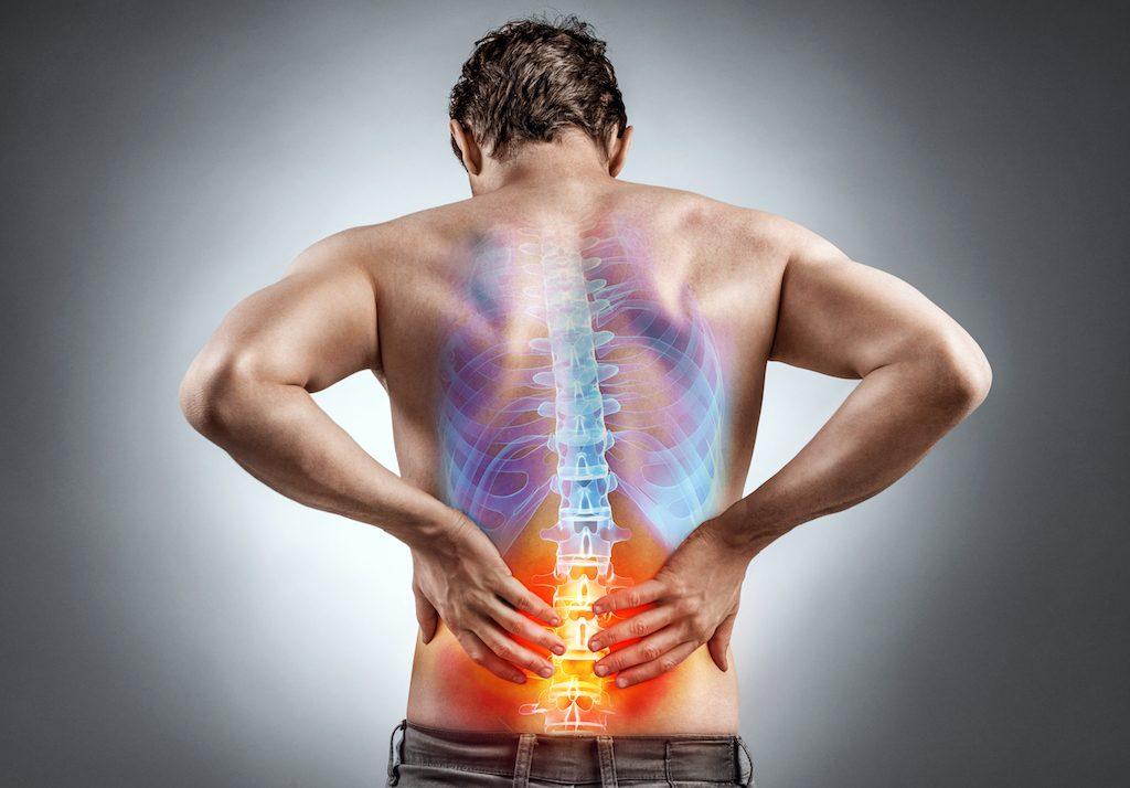 Mal di schiena dovuto all'irrigidimento dei muscoli della schiena