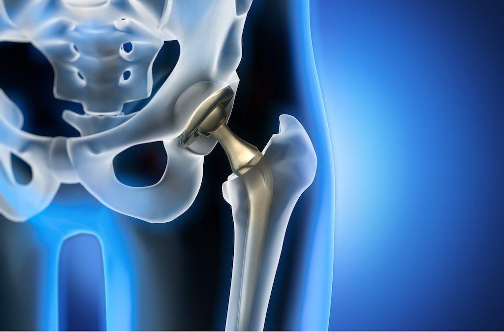 Operazione di Protesi d'Anca Mininvasiva, Anteriore e Standard, Pre e Post Intervento