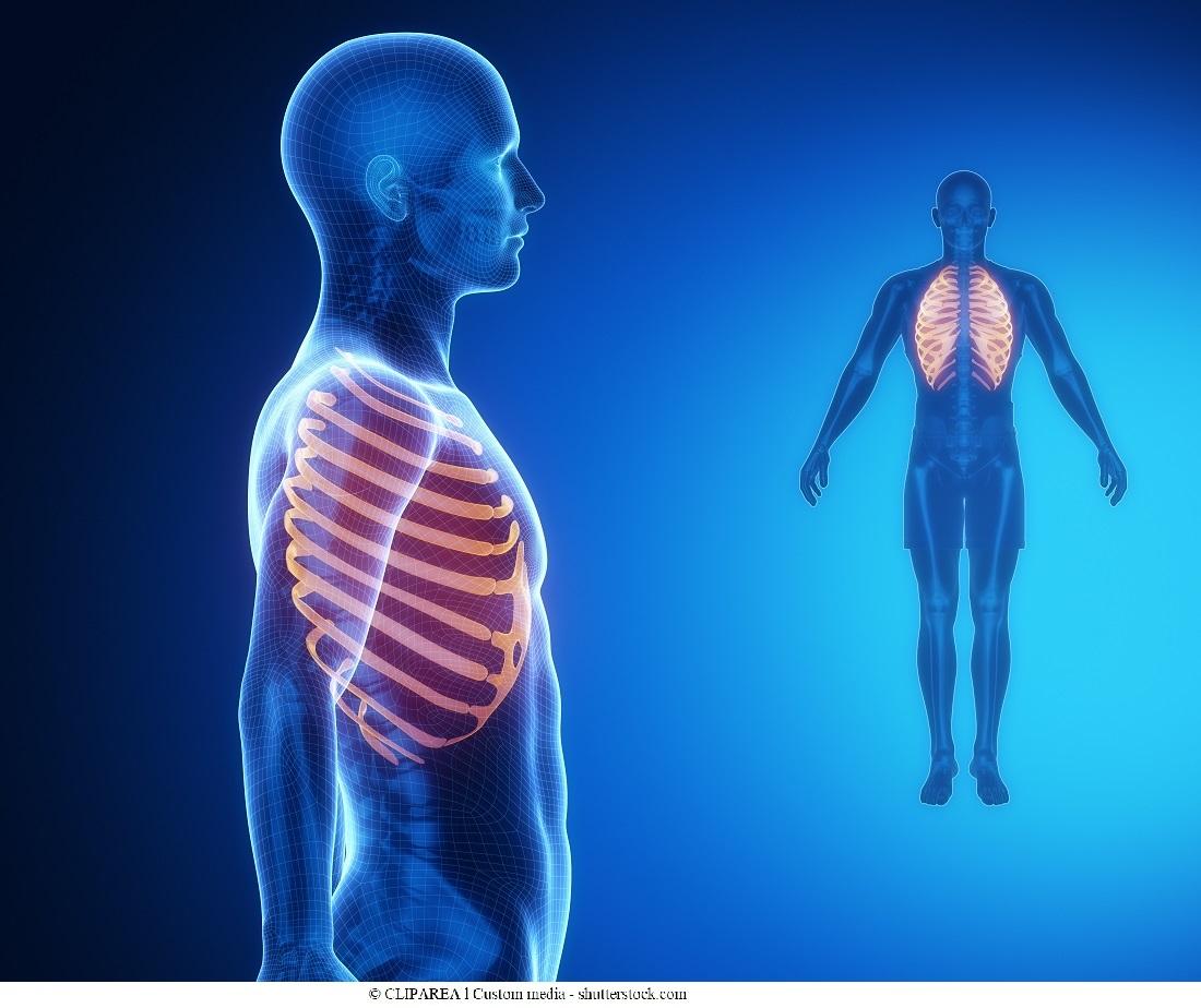 Radiografia al torace e alle ossa