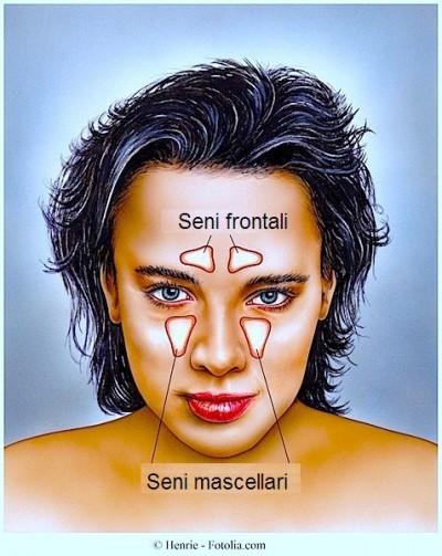 Sinusite,seni frontali,seni mascellari,nasali