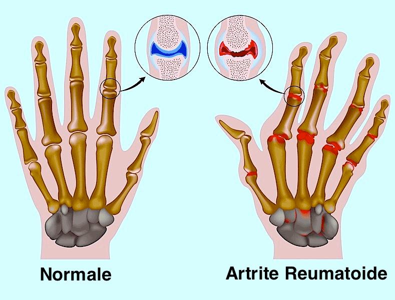 Sintomi dell'artrite