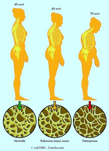 Sintomi dell'osteoporosi e cura